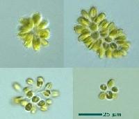 Chrysophyceae