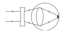Miopi menyebabkan kesulitan melihat benda yang jauh. Penderita miopi dapat ditolong dengan lensa cekung.